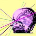 C lair Brain Stare picture